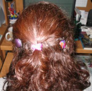 Wendi's cochlear implants from the back